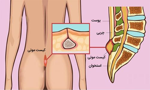 کیست مویی و درمان آن با لیزر