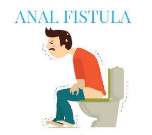 آشنایی با فیستول و درمان آن
