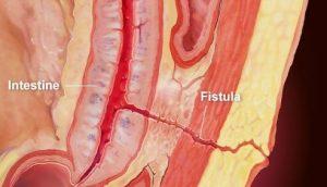 فیستول و درمان آن با لیزر