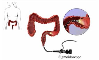 سیگموئیدوسکوپی چیست؟مراحل و روند انجام