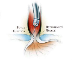 درمان بواسیر با بوتاکس