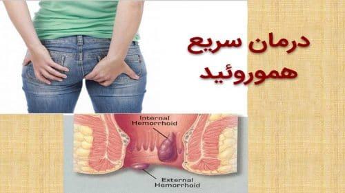 روش هاي درمان سريع و فوري درد بواسير يا هموروئيد
