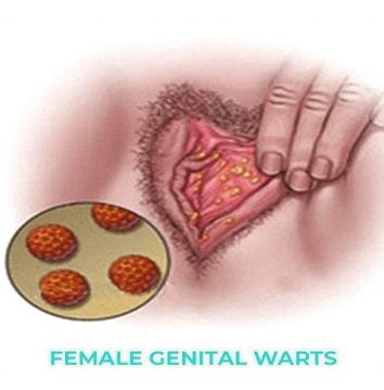 زگیل واژن چیست؟علائم و نشانه های آن و روش های درمانی برای از بین بردن آنها