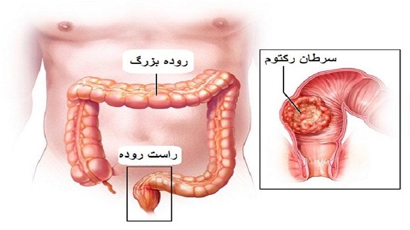 آشنایی با رکتوم یا راست روده، پرولاپس و سرطان رکتوم