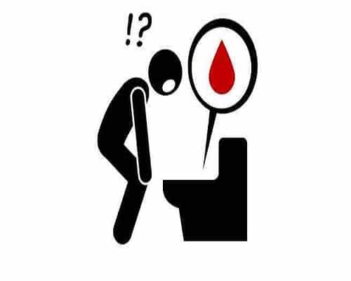 خون در مدفوع