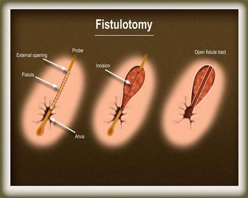 فیستولوتومی