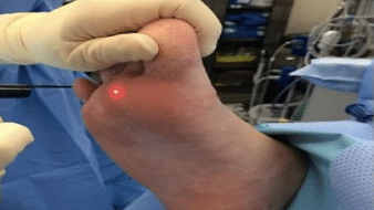درمان زگیل با لیزر