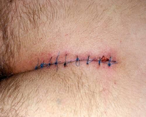 جراحی کیست مویی