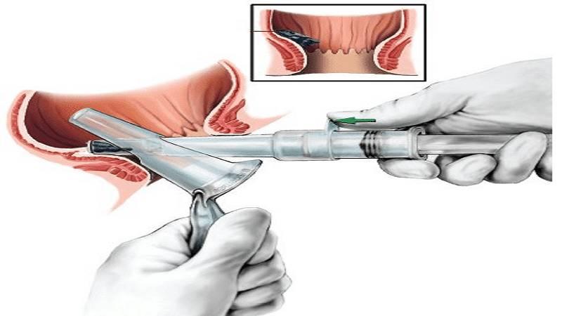 درمان بواسیر یا هموروئید با رابربند، مزایا ، خطرات و عوارض جانبی آن