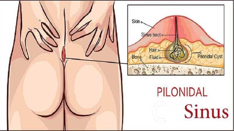 [تصویر:  pilonidal-sinus-treatment-in-iran.jpg]