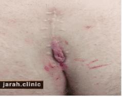 عکس کیست مویی بعد از درمان با روش جراحی بسته
