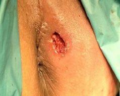 عکس فیستول مقعدی درمان نشده