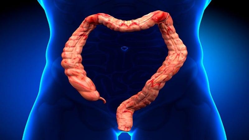 كولكتومي يا جراحي برداشت روده بزرگ چيست و چه عوارضي دارد