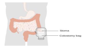 کولوستومی چیست؟ انواع روش ها، عوارض و خطرات آن
