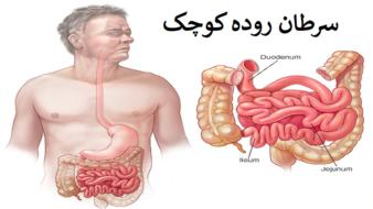 سرطان روده کوچک ؛ روش های درمان، تشخیص، علائم و علت