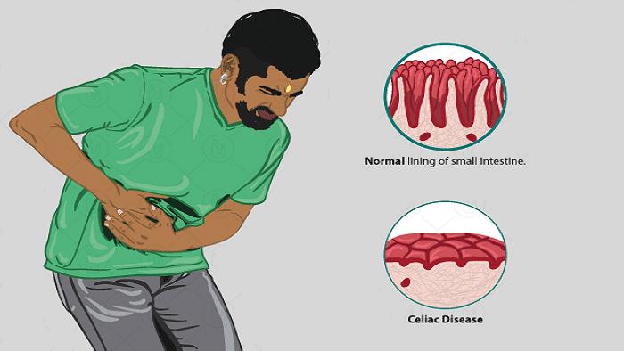 علائم بیماری سلیاک در مردان