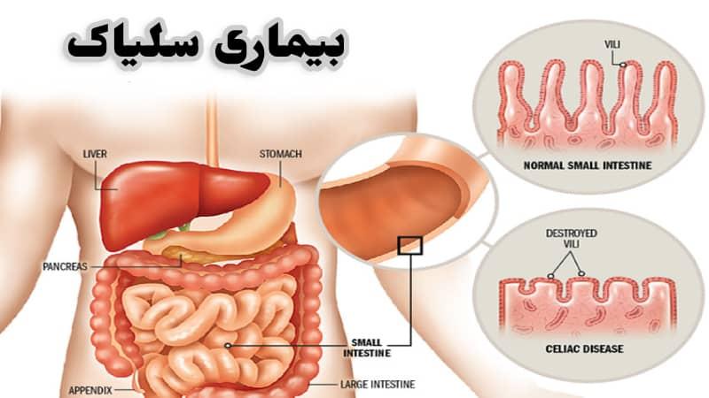 بیماری سلیاک ؛ راه تشخیص ، درمان و علائم در زنان باردار و کودکان