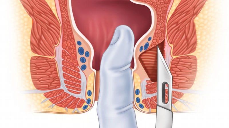 ۴ روش عمل جراحی شقاق مقعدی مزمن و مزایای لیزر