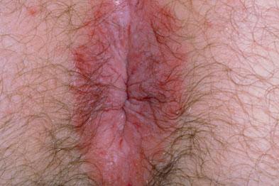 عفونت قارچی مقعد