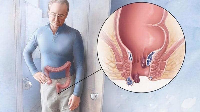 درمان بواسیر و عمل هموروئید با لیزر بدون درد و خونریزی